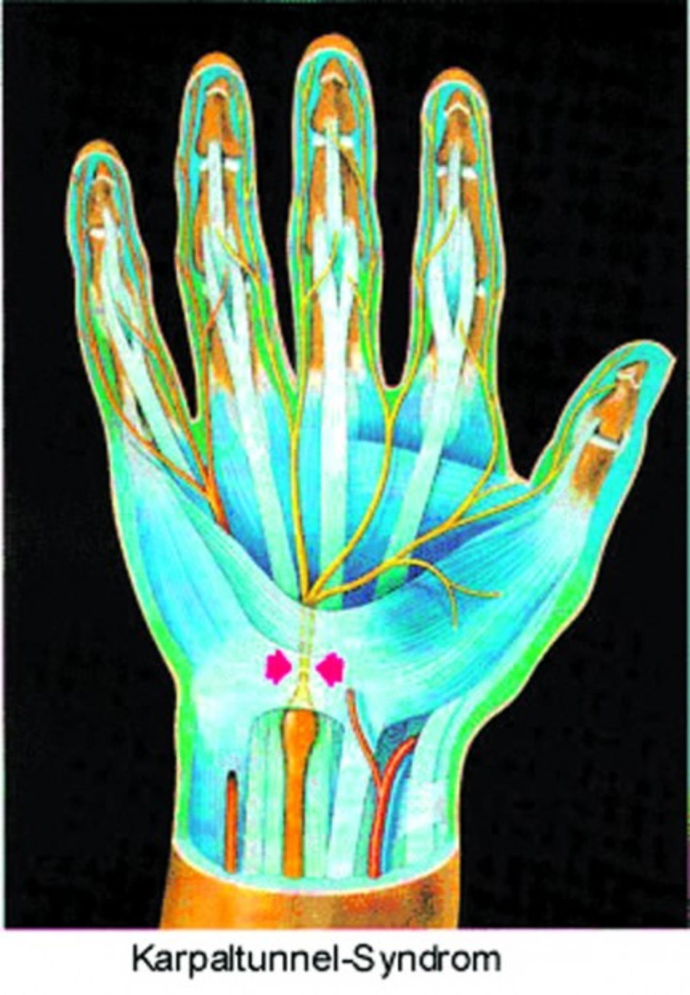 Ringfinger hand kribbeln rechte Finger schlafen