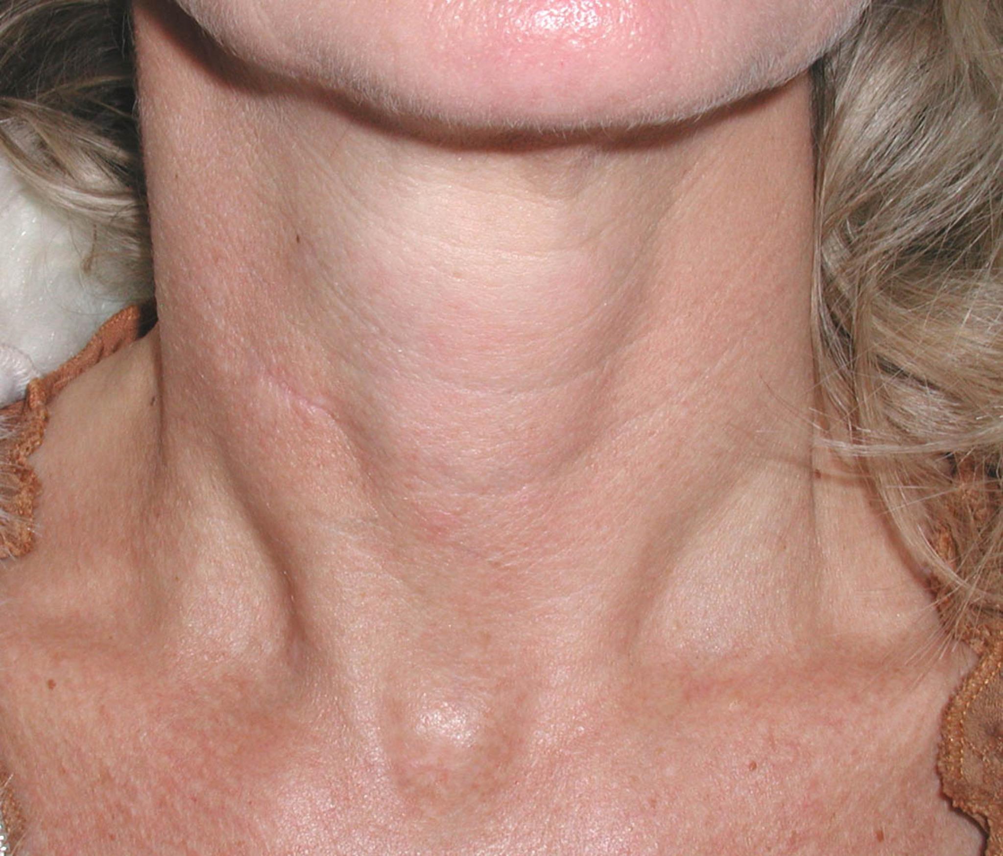 Zehn Jahre ohne Narben am Hals - Lungau