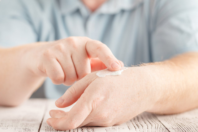 Bei Psoriasis ist die entsprechende Hautpflege nur ein Teil der Therapie.