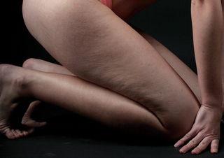 Cellulite betrifft 80 % aller Frauen.