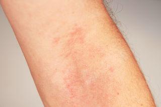 Trockene Haut und Ausschlag sind die ersten Anzeichen einer Erkrankung